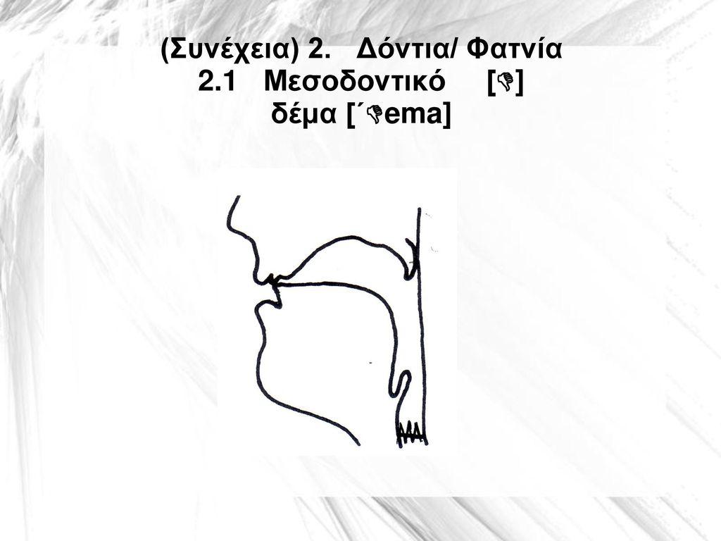 (Συνέχεια) 2. Δόντια/ Φατνία 2.1 Μεσοδοντικό [] δέμα [΄ema]